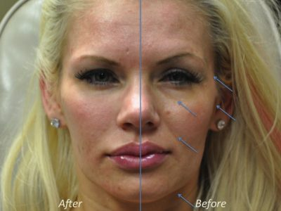 Natural Facial Rejuvenation - Front
