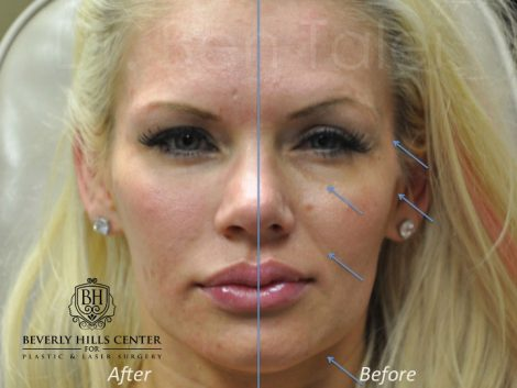Natural Facial Rejuvenation - Front