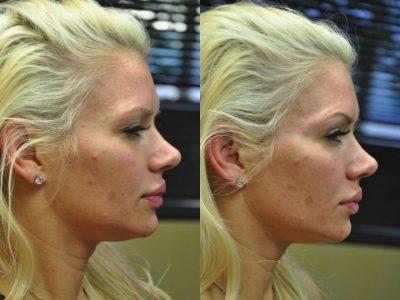 Natural Facial Rejuvenation - Right Side