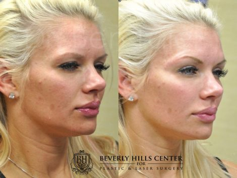 Natural Facial Rejuvenation - Right Side