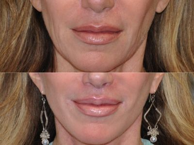Lip Lift Procedure - Front
