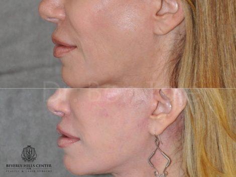 Lip Lift Procedure - Left Side