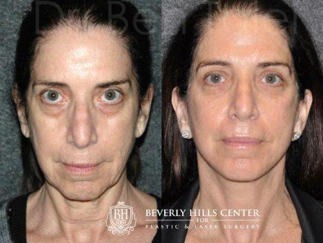 Fractionated CO2 Laser Skin Resurfacing
