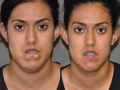 Birthmark and Scar Revision with V-Y Lip Augmenation