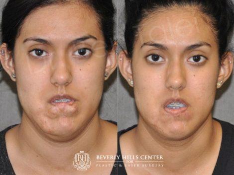 Birthmark and Scar Revision with V-Y Lip Augmenation