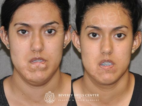 Birthmark and Scar Revision with V-Y Lip Augmenation – Front