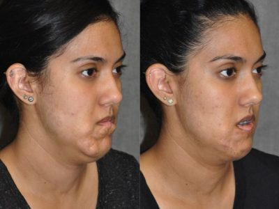 Birthmark and Scar Revision with V-Y Lip Augmenation – Right Side