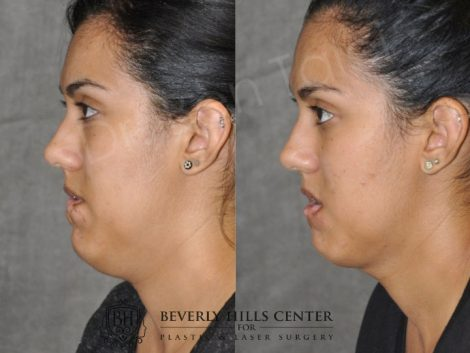 Birthmark and Scar Revision with V-Y Lip Augmenation – Left Side