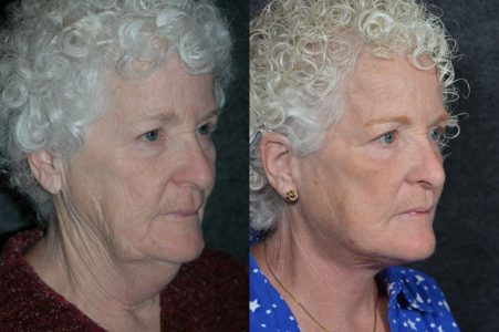 Neck and Face Lift - Right Side