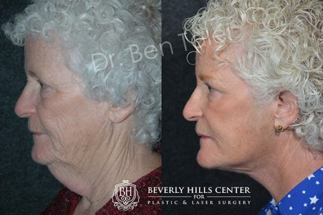 Neck and Face Lift - Left Side