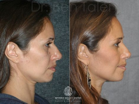 Closed, Minimal Access 3-D Telescopic Rhinoplasty / Nosejob