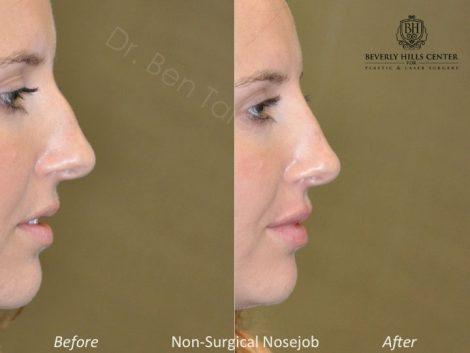 Non Surgical Rhinoplasty / Liquid NoseJob