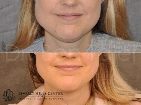 Microliposuction of Neck & Chin with Chin tuck and masseter botox/dysport – Front