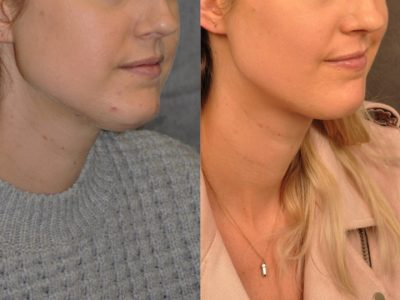 Microliposuction of Neck & Chin with Chin tuck and masseter botox/dysport – Right Side