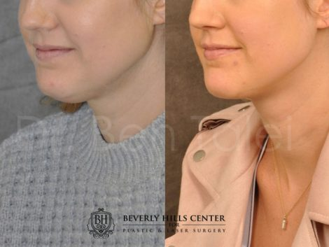Microliposuction of Neck & Chin with Chin tuck and masseter botox/dysport – Left Side