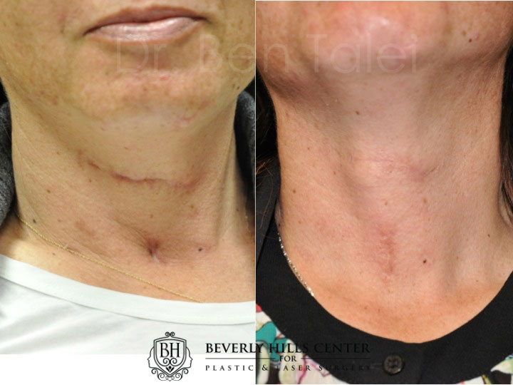 Scar Piercing Mole Removal Before Afters Beverly Hills Center