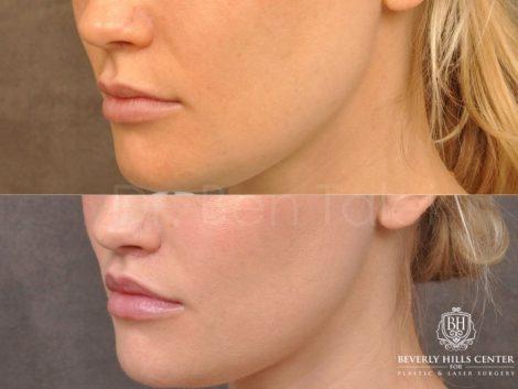 Modified Upper Lip Lift - Left Side