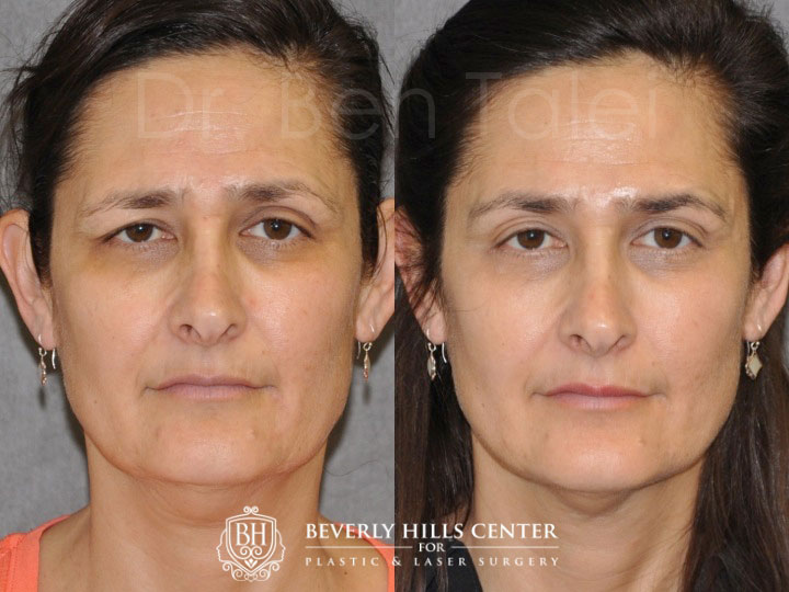 Before and after facial paralysis consider