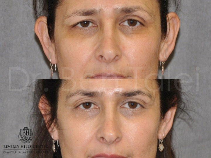 Facial Paralysis Asymmetry Before Afters Beverly Hills Center