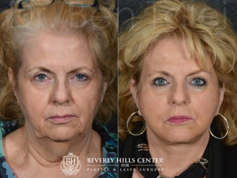 Face and Neck Lift - Front