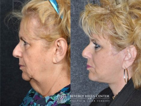 Face and Neck Lift - Left Side