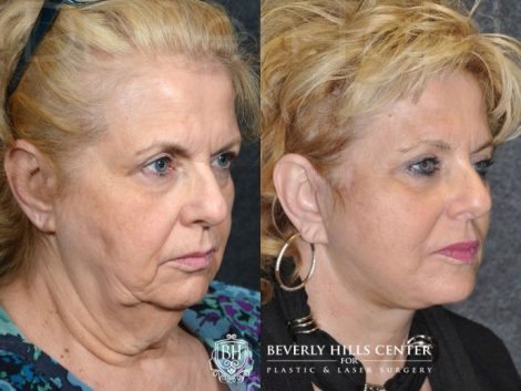 Face and Neck Lift - Right Side