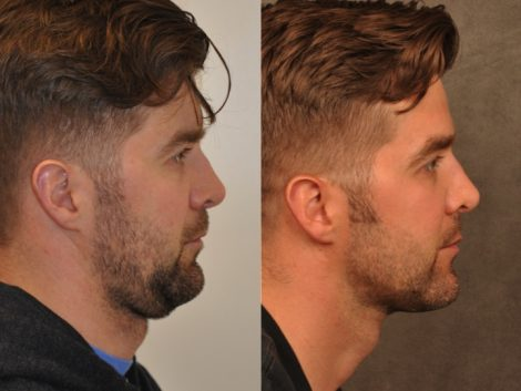 Microliposuction of Neck & Chin with under eye fillers and dysport - Right Side