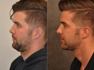 Microliposuction of Neck & Chin with under eye fillers and dysport - Left Side