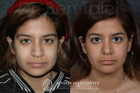 Minimally Invasive (Closed) Revision Rhinoplasty, Septoplasty and Nostril Lightening - Front