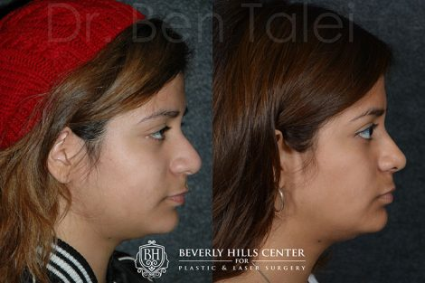Minimally Invasive (Closed) REVISION Rhinoplasty and Nostril Lightening
