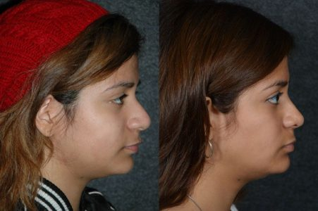 Minimally Invasive (Closed) Revision Rhinoplasty, Septoplasty and Nostril Lightening - Right Side