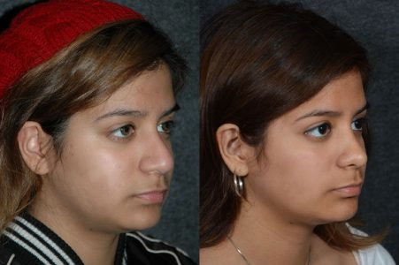 Minimally Invasive (Closed) REVISION Rhinoplasty and Nostril Lightening - Right Side