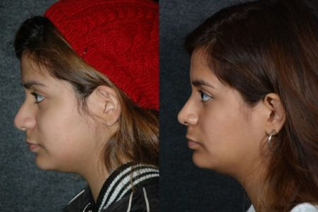 Minimally Invasive (Closed) Revision Rhinoplasty, Septoplasty and Nostril Lightening - Left Side