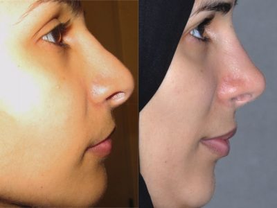 Revision 3rd Rhinoplasty - Right Side