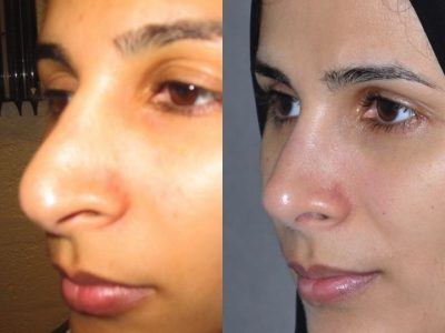 Revision 3rd Rhinoplasty - Left Side