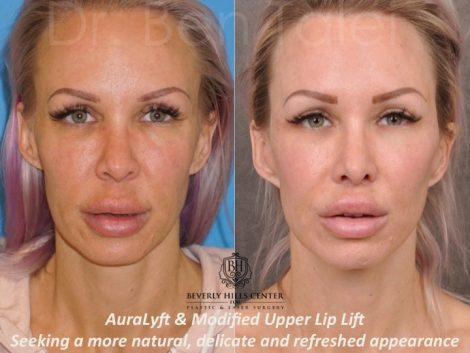 AuraLyft & Modified Upper Lip Lift - Front
