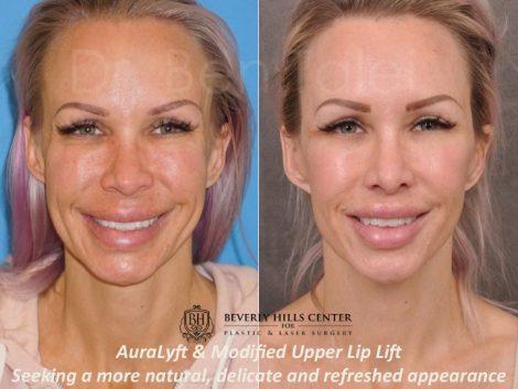 AuraLyft & Modified Upper Lip Lift - Front