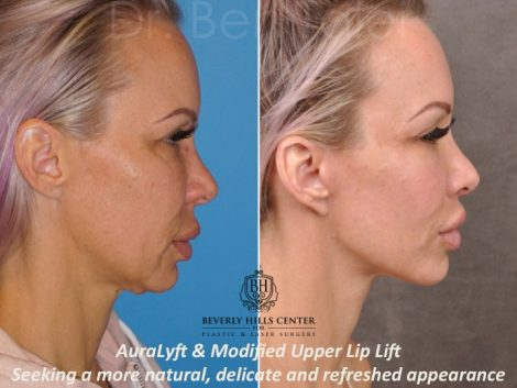 AuraLyft & Modified Upper Lip Lift - Right Side