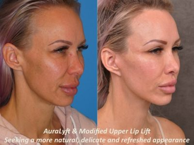 AuraLyft & Modified Upper Lip Lift - Right Side
