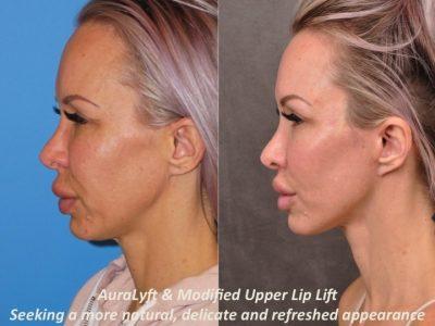 AuraLyft & Modified Upper Lip Lift - Left Side