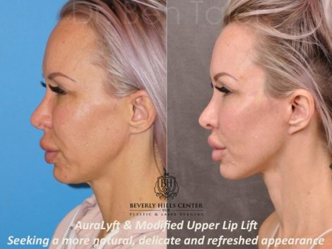 AuraLyft & Modified Upper Lip Lift - Left Side
