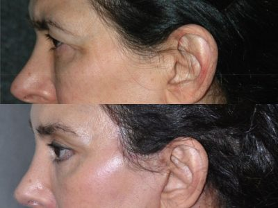Endosopic Brow Lift - Left Side
