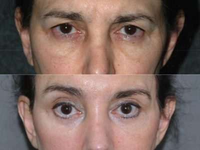 Endosopic Brow Lift - Front