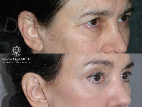 Endosopic Brow Lift - Right Side
