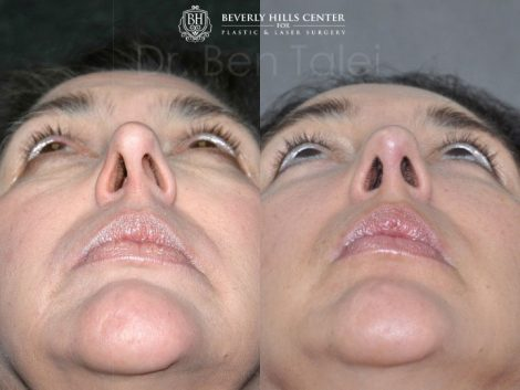 Cheek and Midface Lift - Base