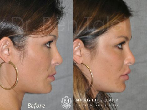 Lip Lift Procedure - Right Side