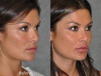 Lip Lift Procedure - Right Side