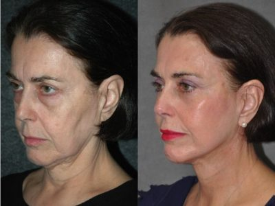 Cheek and Midface Lift - Left Side