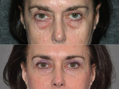 Lower & Upper Eyelid Rejuvenation - Front