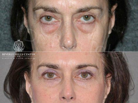 Lower & Upper Eyelid Rejuvenation - Front